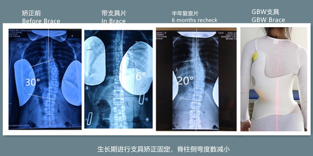 GBW支具矫正案例20190714 GBW脊柱侧弯支具矫正案例 第1张